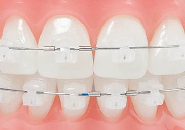 About Smiles Dental Centres - Broken or Lost Dental