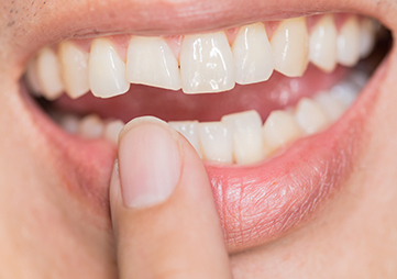 About Smiles Dental Centres - Fractured Teeth