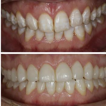 About Smiles Dental Centres - Case #1