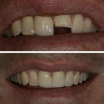 About Smiles Dental Centres - Case #10