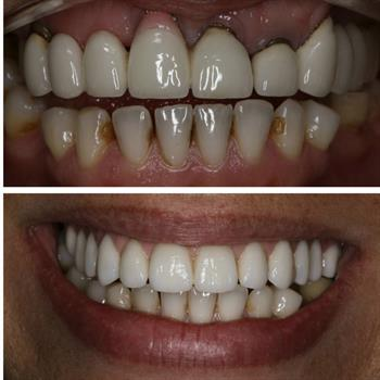 About Smiles Dental Centres - Case #2