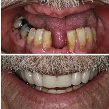 About Smiles Dental Centres - Case #4