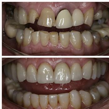About Smiles Dental Centres - Case #5