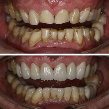 Case for Teeth Whitening and Implant