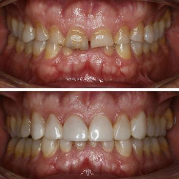 About Smiles Dental Centres - Case #8
