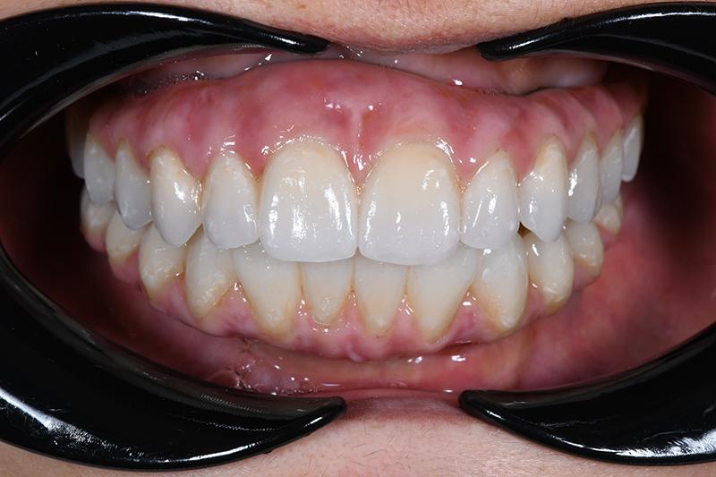 About Smiles Dental Centres Patient