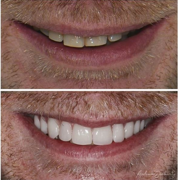 Teeth Whitening by About Smiles Dental Centres