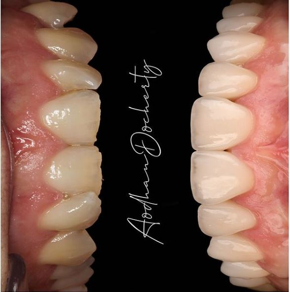 About Smiles Dental Centres - Invisalign