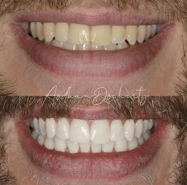 Teeth Whitening at About Smiles Dental