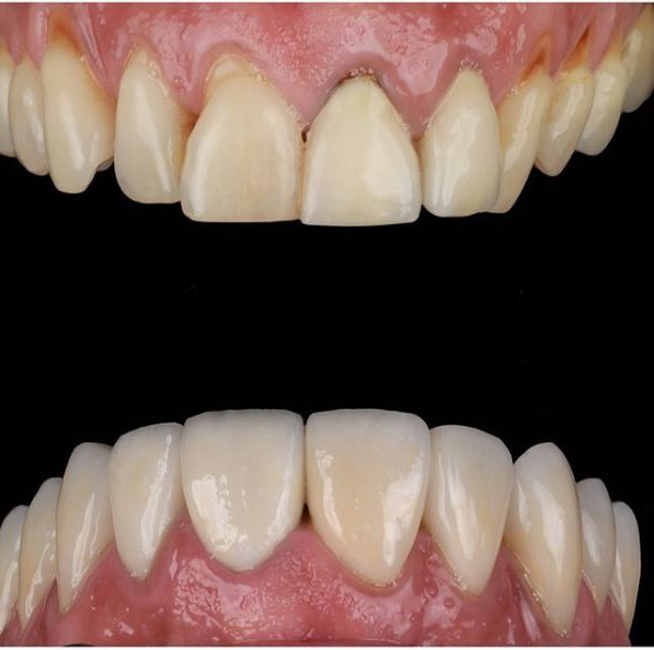 About Smiles Dental Centres - Veneers
