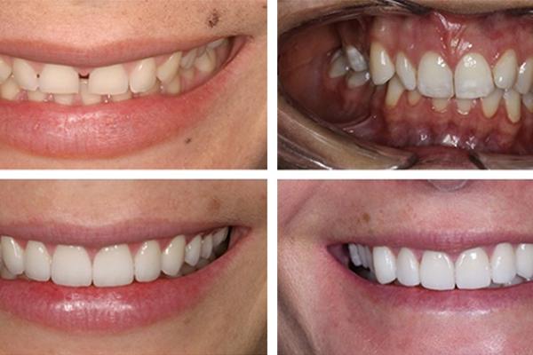 Banner_image_unhappy_look_teeth